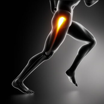 Sports hip injury