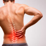 sciatica pain relief astoria ny